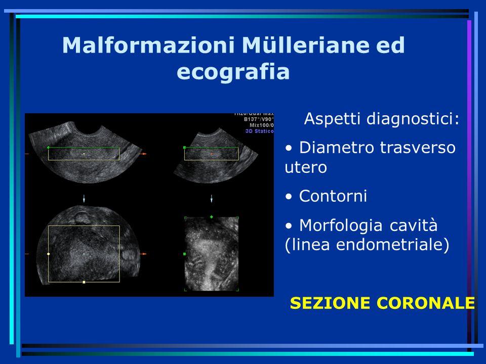 Malformazioni Mülleriane ed ecografia Aspetti diagnostici: Diametro trasverso utero Contorni Morfologia cavità (linea endometriale) SEZIONE CORONALE