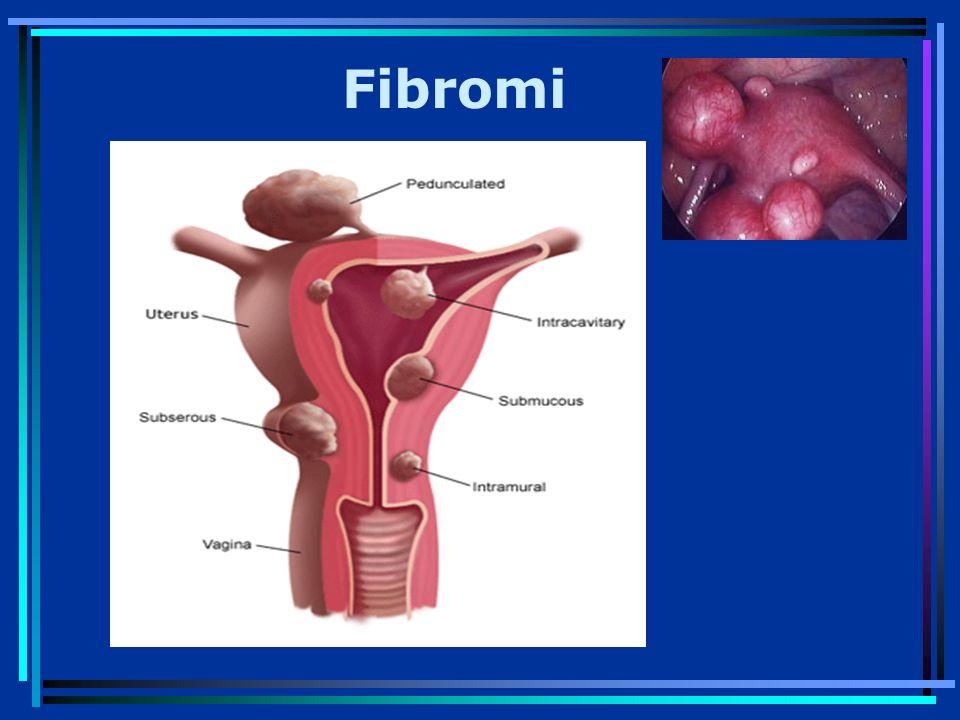 Fibromi