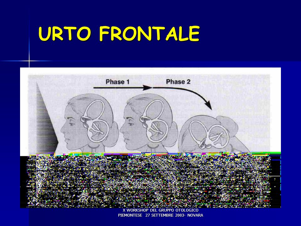 URTO FRONTALE