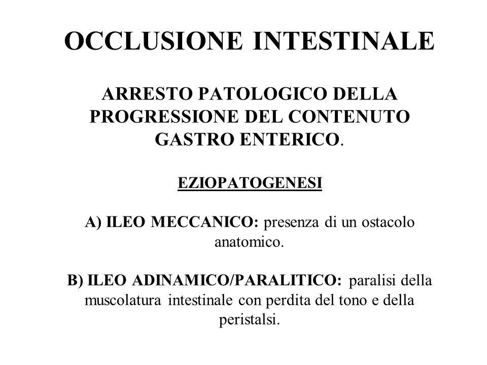 OCCLUSIONE INTESTINALE ARRESTO PATOLOGICO DELLA PROGRESSIONE DEL CONTENUTO GASTRO ENTERICO. EZIOPATOGENESI A) ILEO MECCANICO: presenza di un ostacolo