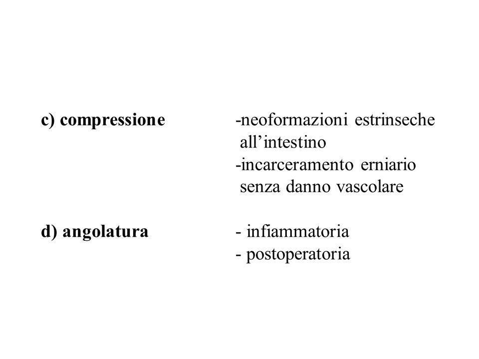 c) compressione-neoformazioni estrinseche allintestino -incarceramento erniario senza danno vascolare d) angolatura- infiammatoria - postoperatoria