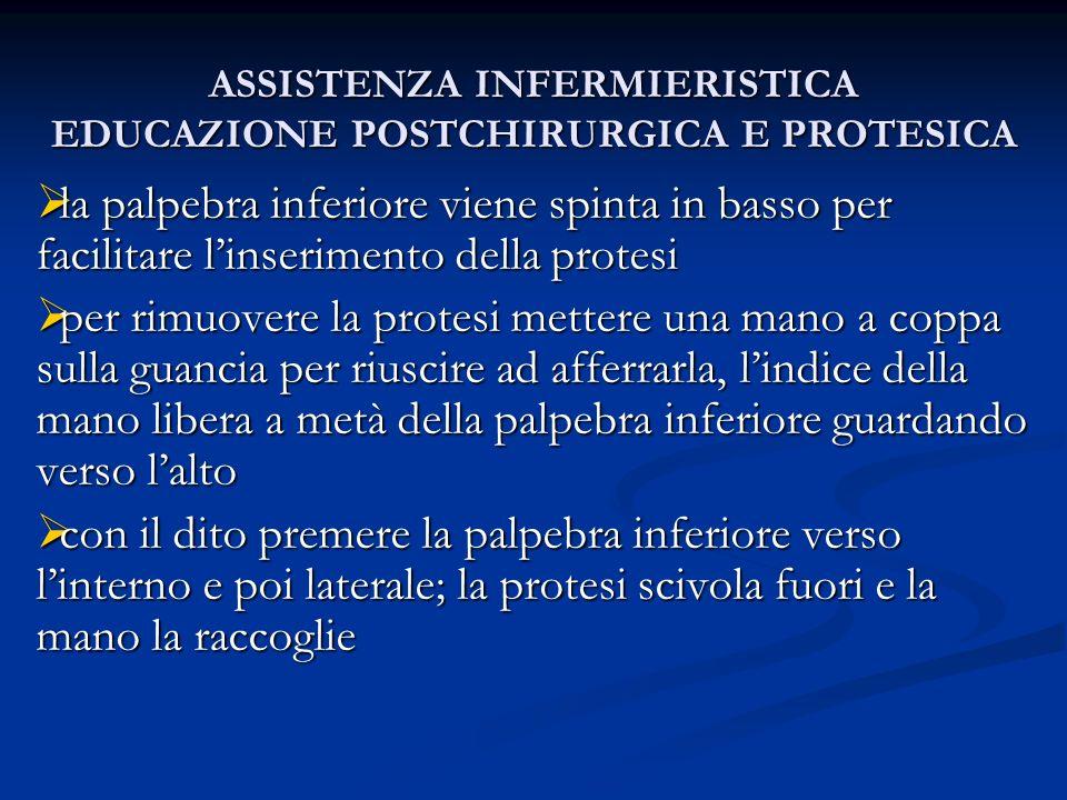 ASSISTENZA INFERMIERISTICA EDUCAZIONE POSTCHIRURGICA E PROTESICA la palpebra inferiore viene spinta in basso per facilitare linserimento della protesi
