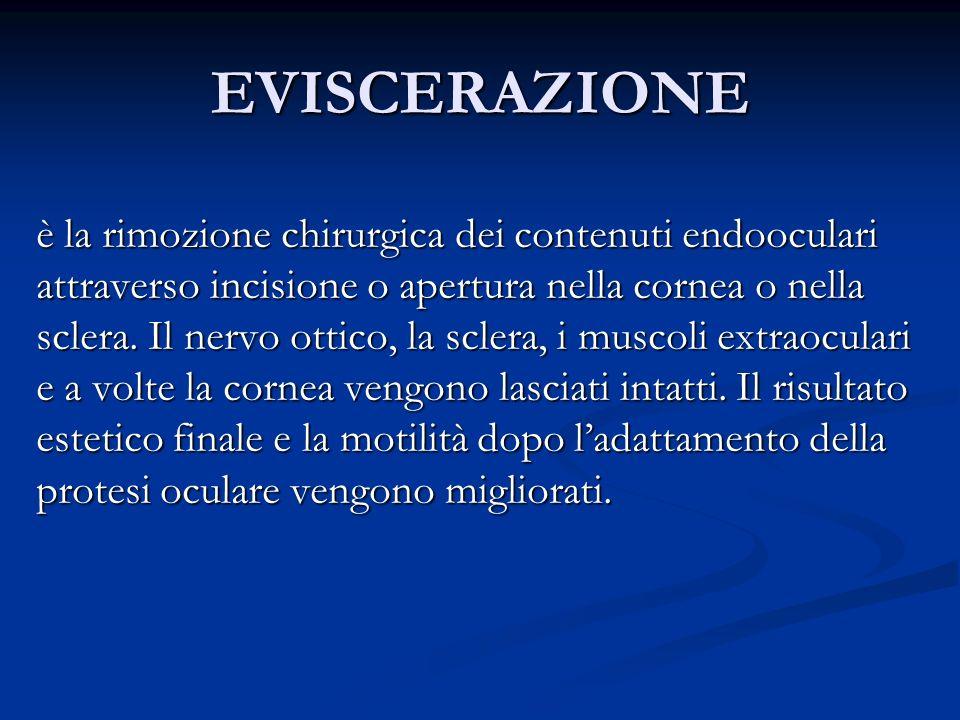 EVISCERAZIONE è la rimozione chirurgica dei contenuti endooculari attraverso incisione o apertura nella cornea o nella sclera. Il nervo ottico, la scl