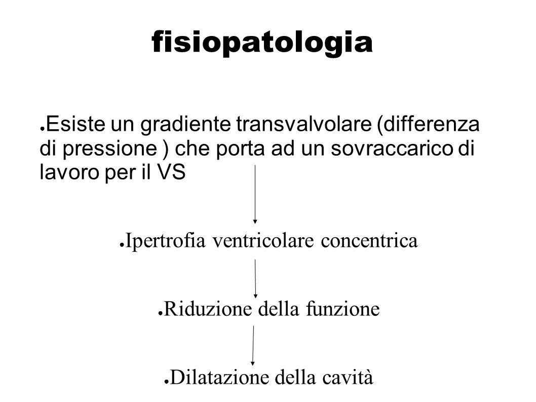 fisiopatologia Esiste un gradiente transvalvolare (differenza di pressione ) che porta ad un sovraccarico di lavoro per il VS Ipertrofia ventricolare
