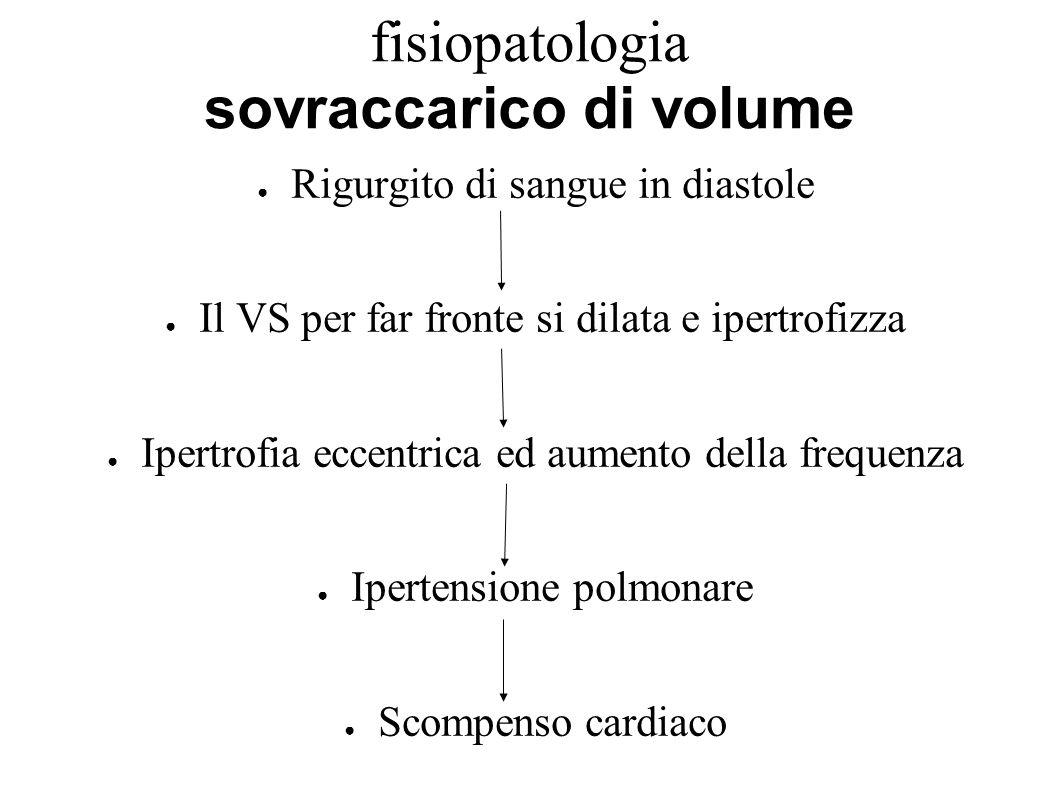 fisiopatologia sovraccarico di volume Rigurgito di sangue in diastole Il VS per far fronte si dilata e ipertrofizza Ipertrofia eccentrica ed aumento d
