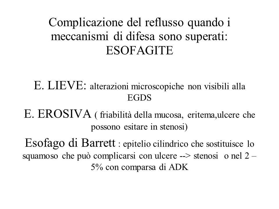 Complicazione del reflusso quando i meccanismi di difesa sono superati: ESOFAGITE E. LIEVE: alterazioni microscopiche non visibili alla EGDS E. EROSIV