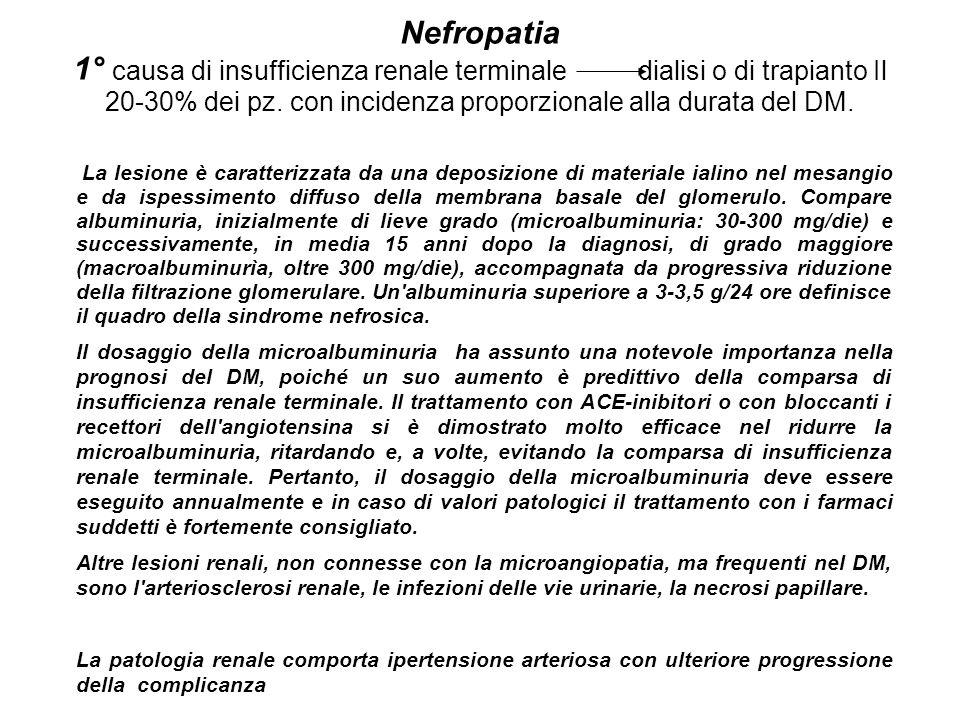 Nefropatia 1° causa di insufficienza renale terminale dialisi o di trapianto Il 20-30% dei pz. con incidenza proporzionale alla durata del DM. La lesi