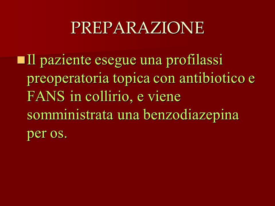 PREPARAZIONE Il paziente esegue una profilassi preoperatoria topica con antibiotico e FANS in collirio, e viene somministrata una benzodiazepina per o