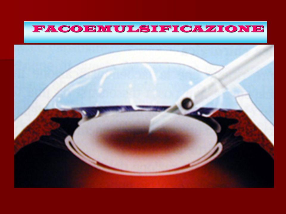 FACOEMULSIFICAZIONE