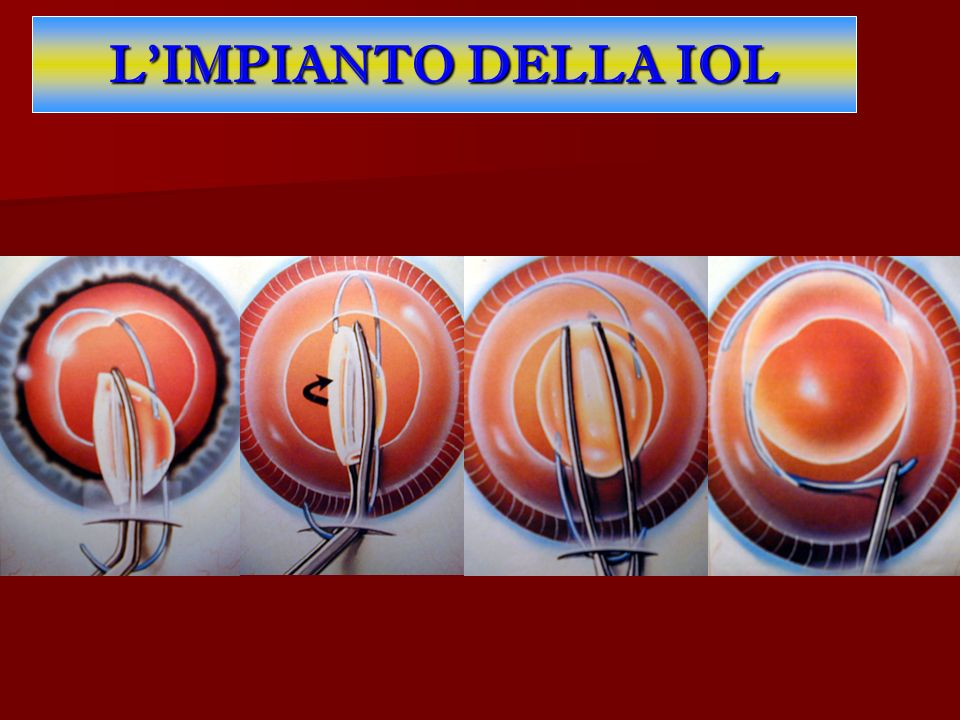 LIMPIANTO DELLA IOL