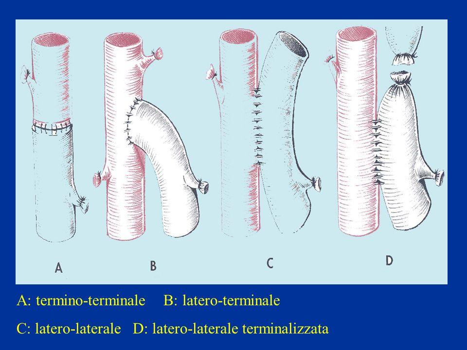 A: termino-terminale B: latero-terminale C: latero-laterale D: latero-laterale terminalizzata