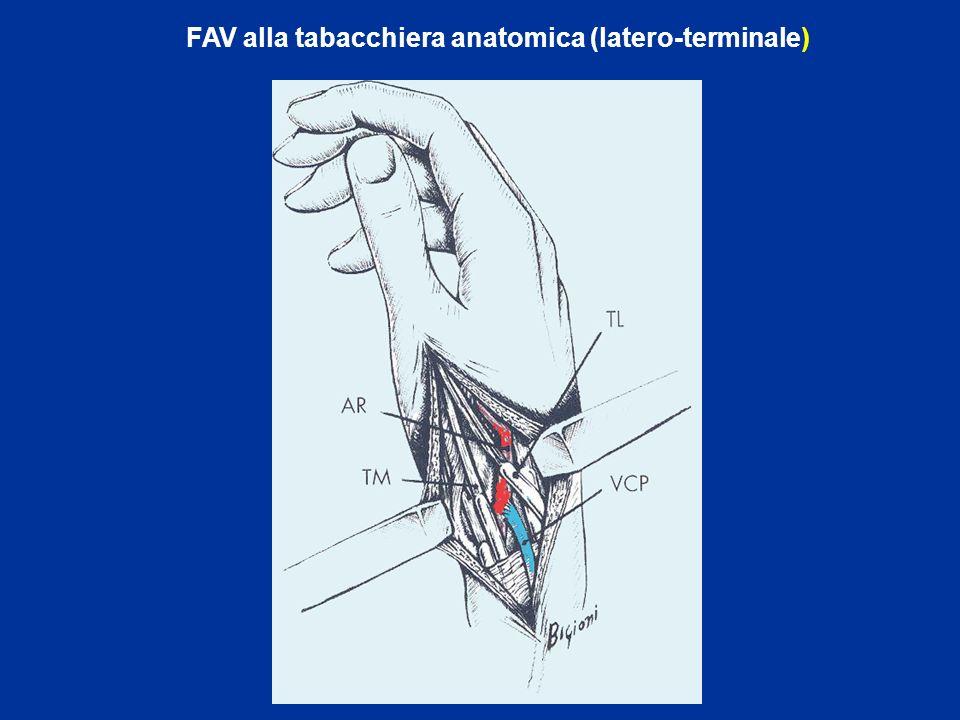 FAV alla tabacchiera anatomica (latero-terminale)