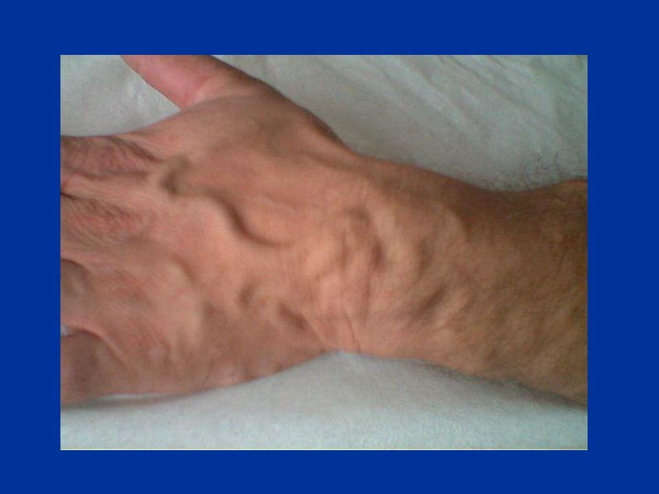 LE FISTOLE DISTALI FAV alla Tabacchiera Anatomica (latero-terminale) FAV tipo Cimino-Brescia (1962) latero-laterale (inizialmente descritta) latero-te