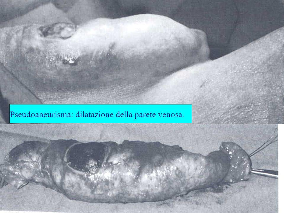 Pseudoaneurisma: dilatazione della parete venosa.
