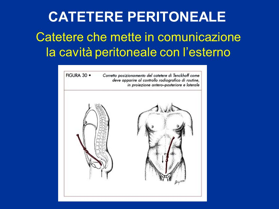 CATETERE PERITONEALE Catetere che mette in comunicazione la cavità peritoneale con lesterno