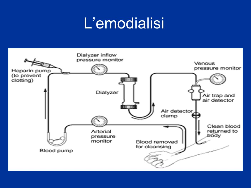 Nel paziente dializzato, la DIALISI non rappresenta (e non potrebbe) lunico presidio per salvaguardarne la salute: 2) Terapia della Dislipidemia 3) Terapia dell eventuale Diabete 4) Dieta - Apporto Proteico - Apporto di Glucidi - Apporto di Lipidi - Apporto di Sodio e Potassio 5) Terapia dell Osteodistrofia Uremica 6) Terapia dell Anemia 7) Terapia dell inattività fisica (FISIOKINESITERAPIA)