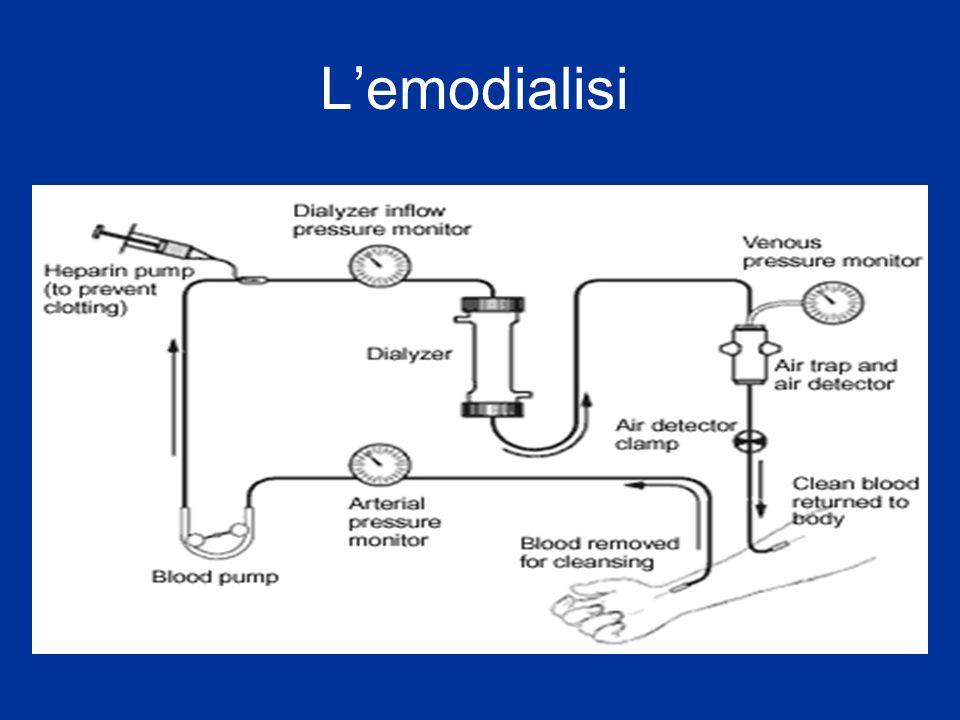Lemodialisi