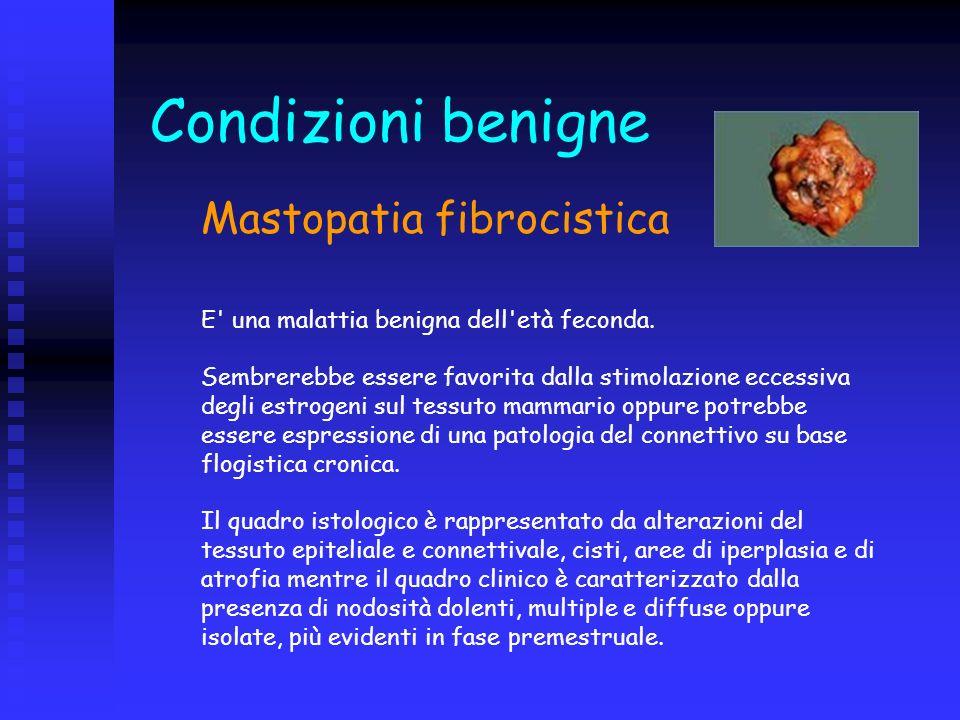 Mastopatia fibrocistica E' una malattia benigna dell'età feconda. Sembrerebbe essere favorita dalla stimolazione eccessiva degli estrogeni sul tessuto