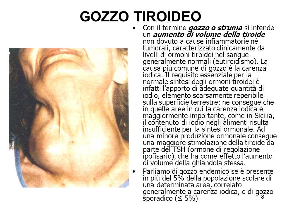 GOZZO TIROIDEO Con il termine gozzo o struma si intende un aumento di volume della tiroide non dovuto a cause infiammatorie né tumorali, caratterizzat