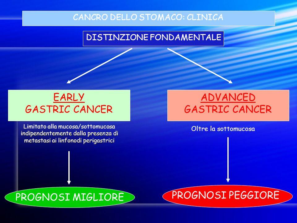 CANCRO DELLO STOMACO: CLINICA DISTINZIONE FONDAMENTALE indipendentemente dalla presenza di metastasi ai linfonodi perigastrici Limitato alla mucosa/so