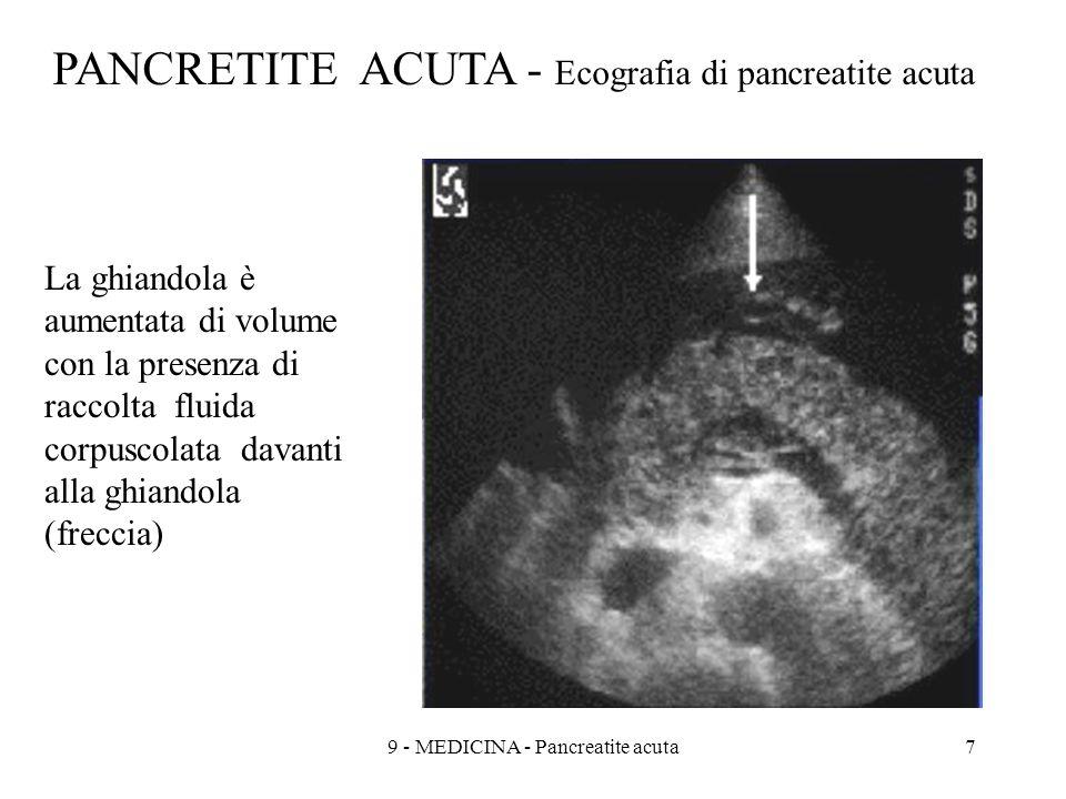 PANCRETITE ACUTA - Ecografia di pancreatite acuta La ghiandola è aumentata di volume con la presenza di raccolta fluida corpuscolata davanti alla ghiandola (freccia) 79 - MEDICINA - Pancreatite acuta
