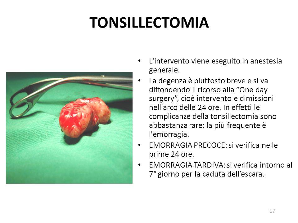 TONSILLECTOMIA L'intervento viene eseguito in anestesia generale. La degenza è piuttosto breve e si va diffondendo il ricorso alla One day surgery, ci