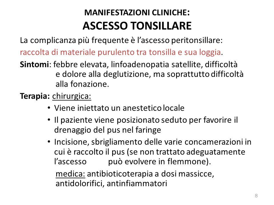 MANIFESTAZIONI CLINICHE : ASCESSO TONSILLARE La complicanza più frequente è lascesso peritonsillare: raccolta di materiale purulento tra tonsilla e su