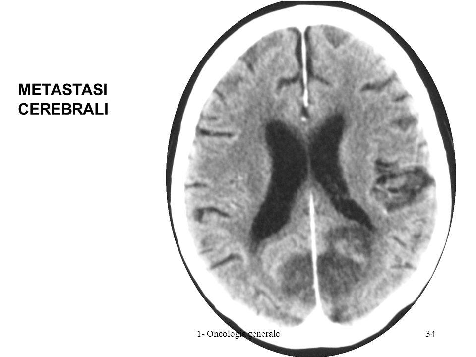 METASTASI CEREBRALI 341- Oncologia generale