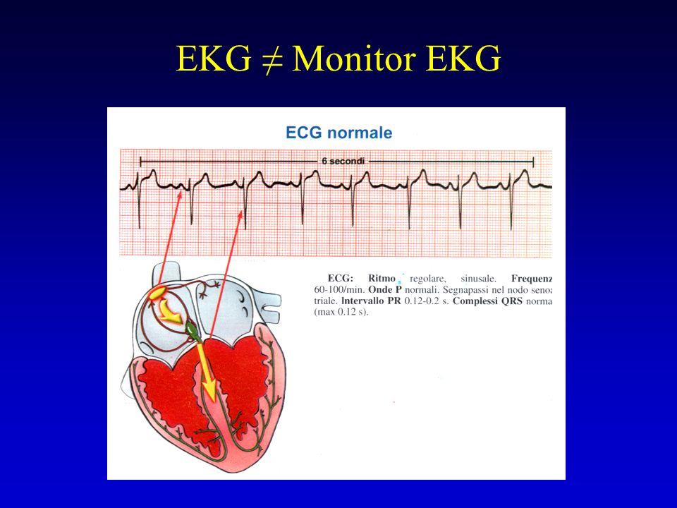 EKG Monitor EKG
