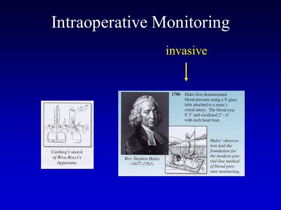 Intraoperative Monitoring invasive
