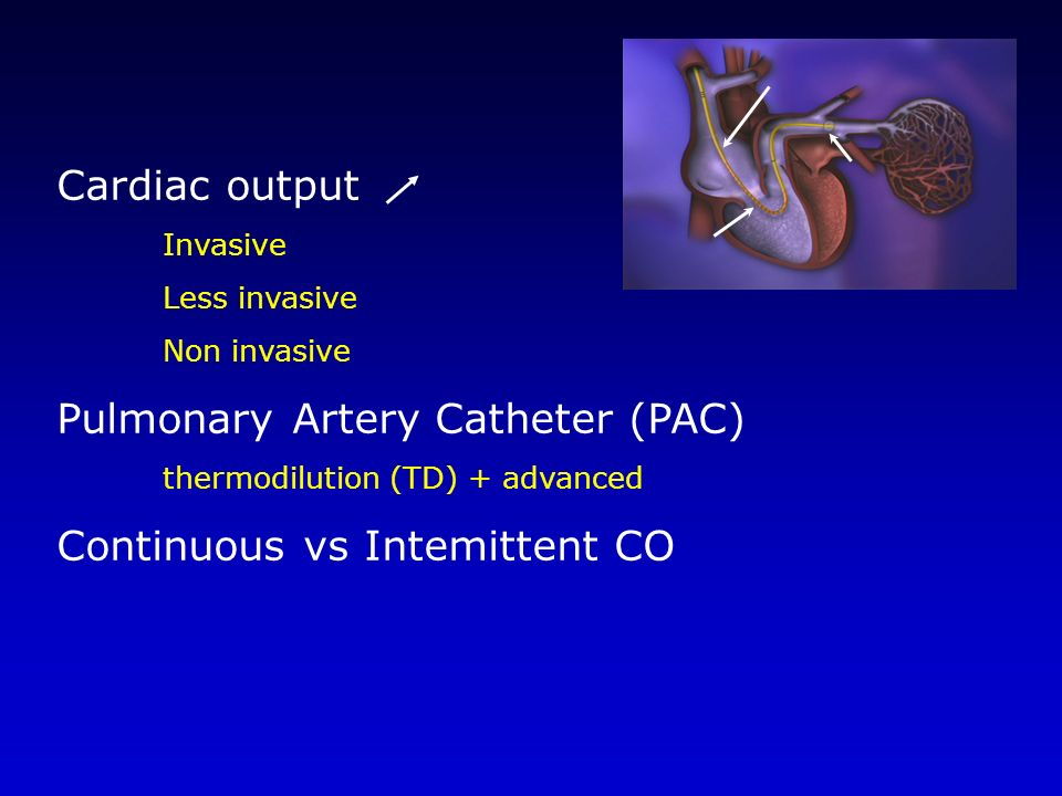 Cardiac output Invasive Less invasive Non invasive Pulmonary Artery Catheter (PAC) thermodilution (TD) + advanced Continuous vs Intemittent CO