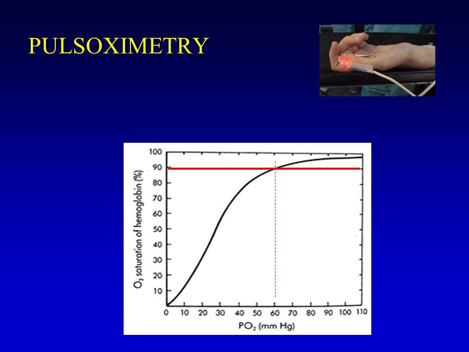 PULSOXIMETRY