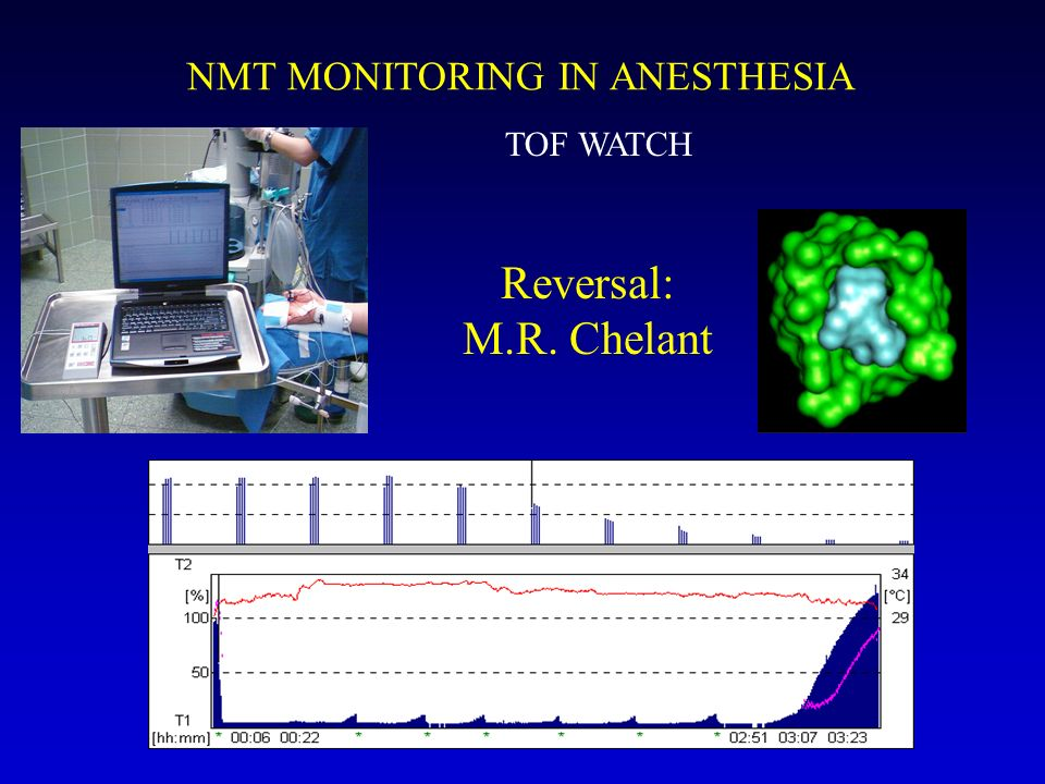 TOF WATCH NMT MONITORING IN ANESTHESIA Reversal: M.R. Chelant