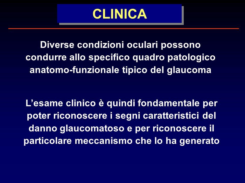 Diverse condizioni oculari possono condurre allo specifico quadro patologico anatomo-funzionale tipico del glaucoma Lesame clinico è quindi fondamentale per poter riconoscere i segni caratteristici del danno glaucomatoso e per riconoscere il particolare meccanismo che lo ha generato CLINICA
