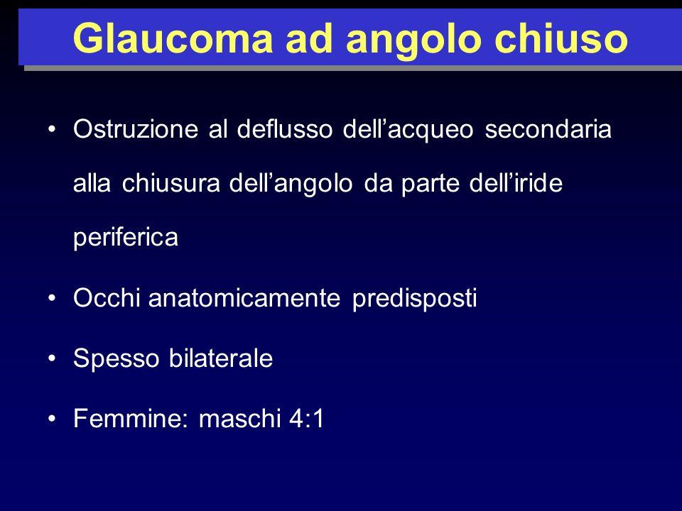 Ostruzione al deflusso dellacqueo secondaria alla chiusura dellangolo da parte delliride periferica Occhi anatomicamente predisposti Spesso bilaterale Femmine: maschi 4:1 Glaucoma ad angolo chiuso