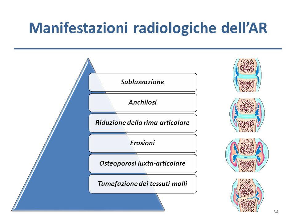 Manifestazioni radiologiche dellAR SublussazioneAnchilosiRiduzione della rima articolareErosioniOsteoporosi iuxta-articolareTumefazione dei tessuti mo