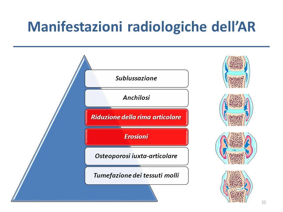Manifestazioni radiologiche dellAR SublussazioneAnchilosi Riduzione della rima articolare ErosioniOsteoporosi iuxta-articolareTumefazione dei tessuti