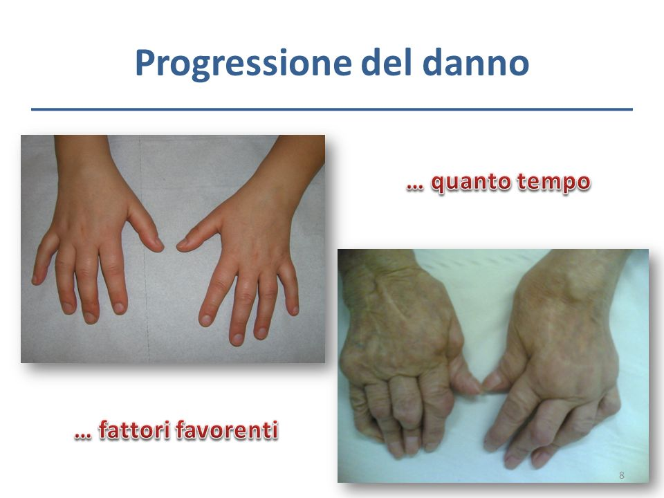 Progressione del danno 8