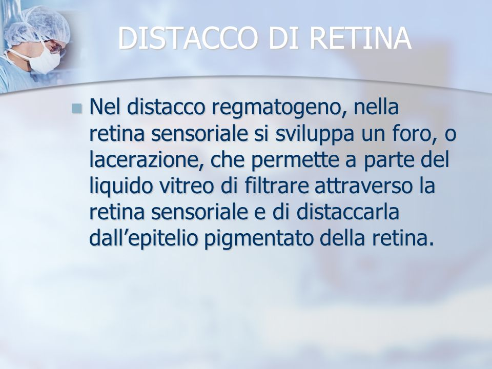 DISTACCO DI RETINA Nel distacco regmatogeno, nella retina sensoriale si sviluppa un foro, o lacerazione, che permette a parte del liquido vitreo di fi