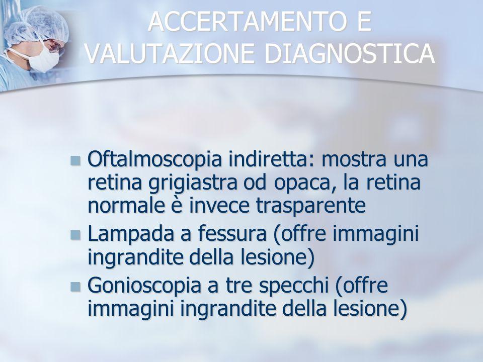 ACCERTAMENTO E VALUTAZIONE DIAGNOSTICA Oftalmoscopia indiretta: mostra una retina grigiastra od opaca, la retina normale è invece trasparente Oftalmos