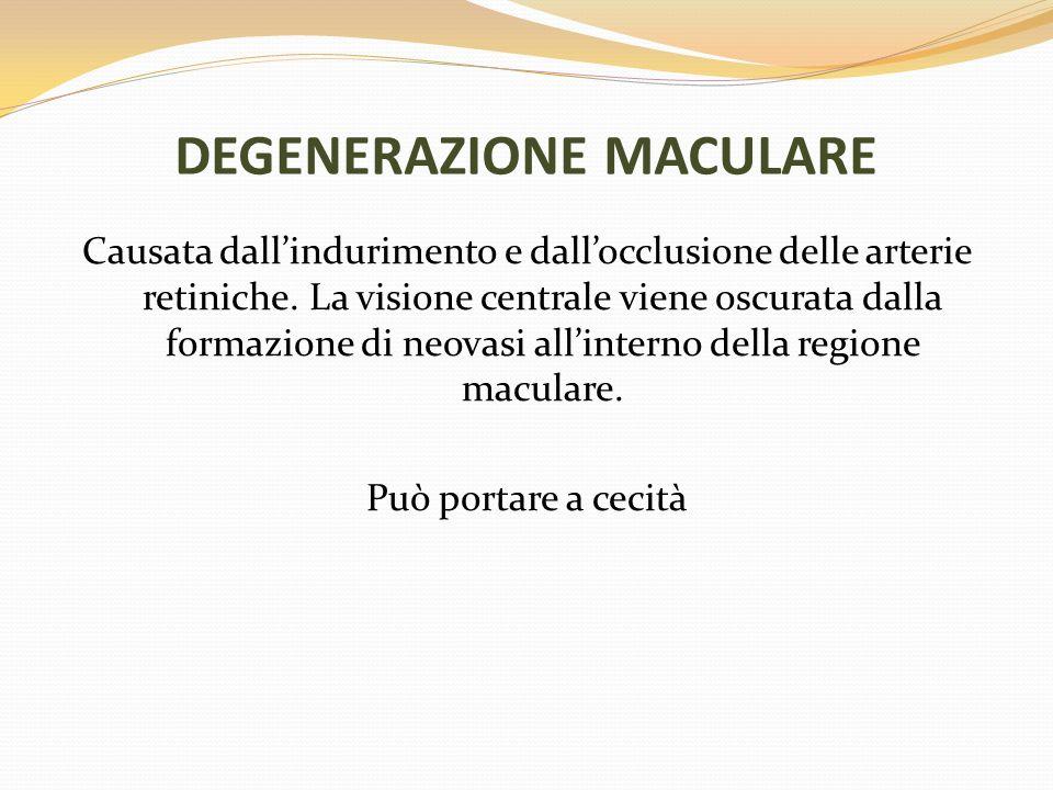 DEGENERAZIONE MACULARE Causata dallindurimento e dallocclusione delle arterie retiniche. La visione centrale viene oscurata dalla formazione di neovas
