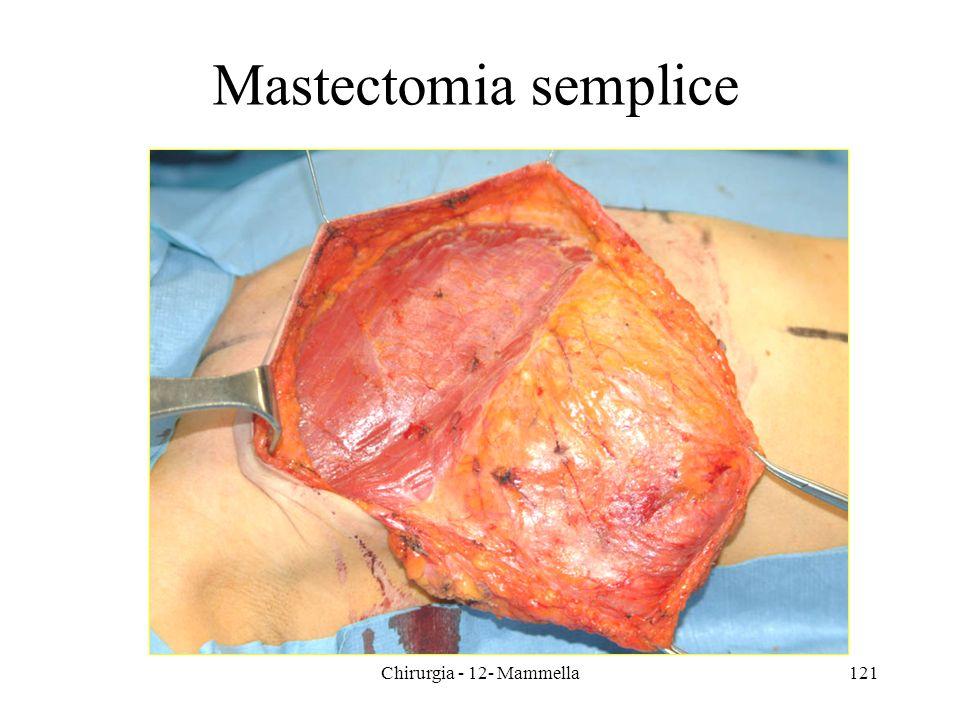 121 Mastectomia semplice