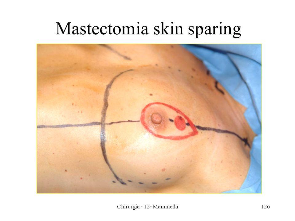 Mastectomia skin sparing 126Chirurgia - 12- Mammella