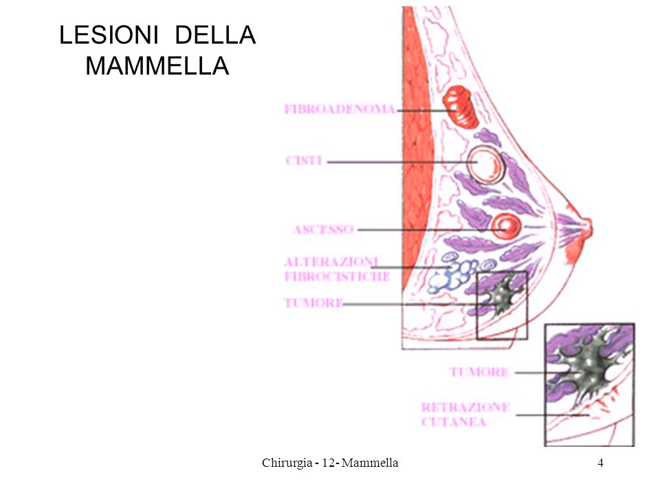 SINTOMATOLOGIA massa, nodulo indolore massa, nodulo dolente retrazione del capezzolo retrazione cutanea secrezione dal capezzolo edema locale/cute a buccia darancia ascesso massa ascellare massa ascellare e della mammella ulcerazione edema dellarto omolaterale 45Chirurgia - 12- Mammella