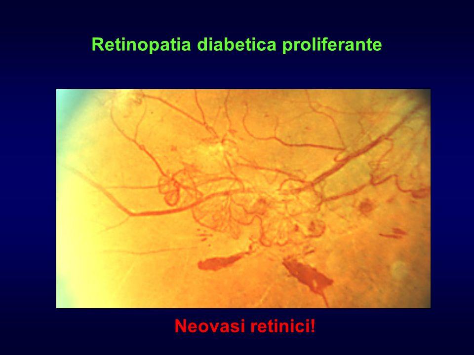 Neovasi retinici!