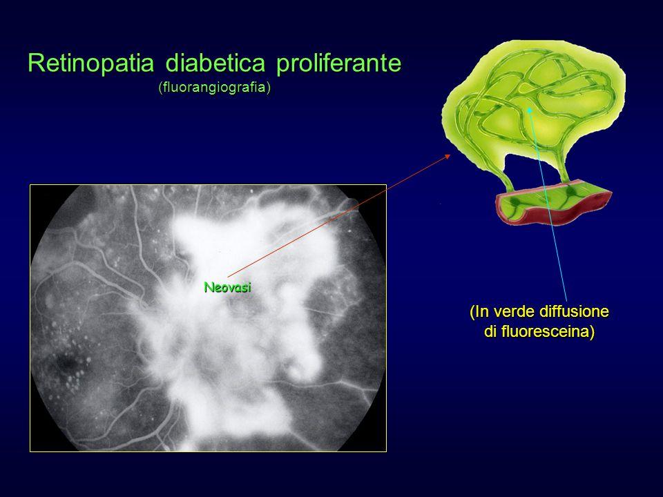 Retinopatia diabetica proliferante (fluorangiografia) Neovasi (In verde diffusione di fluoresceina)