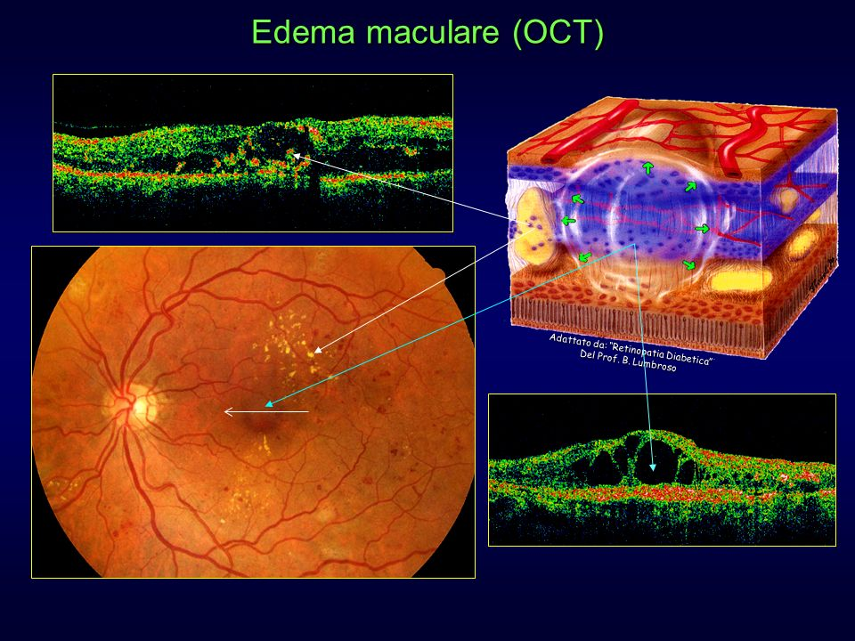 Edema maculare (OCT) Adattato da: Retinopatia Diabetica Del Prof. B. Lumbroso