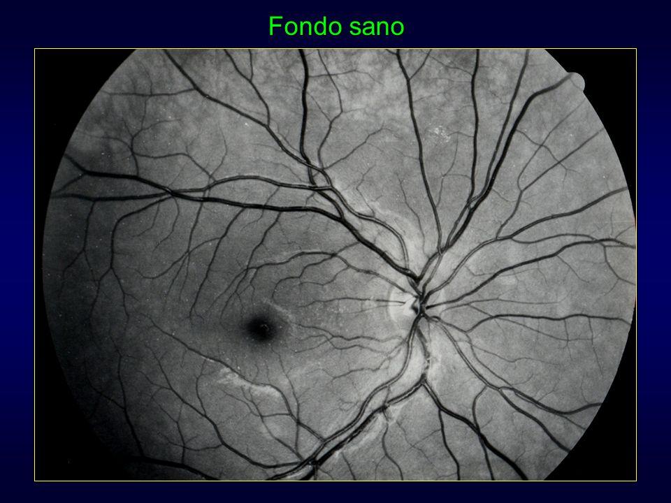Controllo fattori di rischio sistemici Controllo fattori di rischio sistemici Trattamento laser (focale/griglia, PRP)Trattamento laser (focale/griglia, PRP) Farmaci anti-VEGF/steroidi (RDP, edema maculare)Farmaci anti-VEGF/steroidi (RDP, edema maculare) Vitrectomia (emovitreo, distacco retinico)Vitrectomia (emovitreo, distacco retinico) Retinopatia diabetica: trattamento
