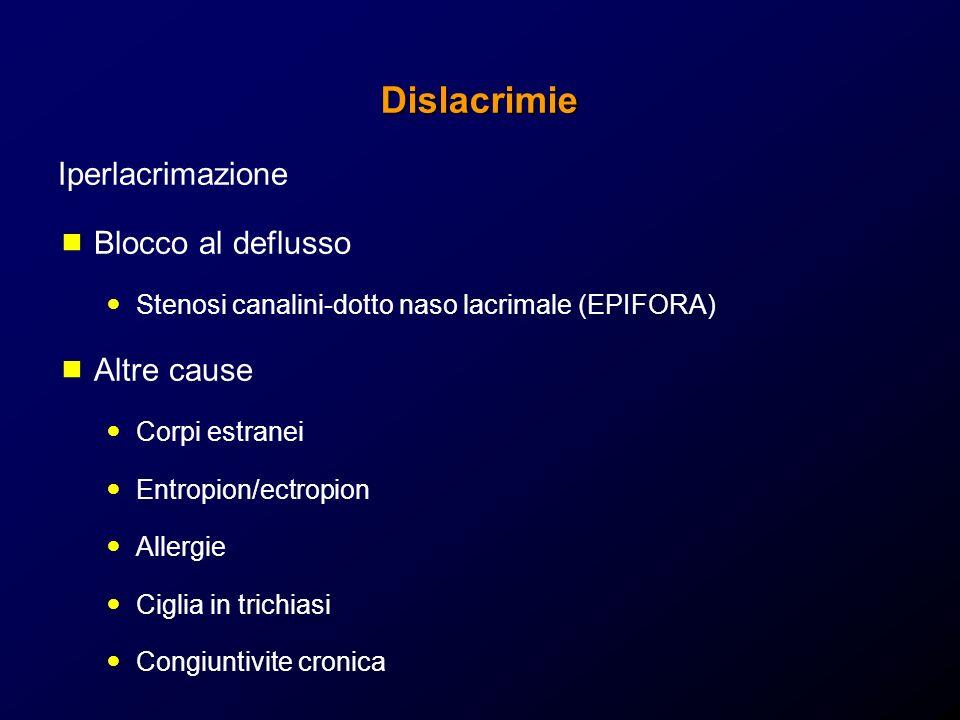 Dislacrimie Iperlacrimazione Blocco al deflusso Stenosi canalini-dotto naso lacrimale (EPIFORA) Altre cause Corpi estranei Entropion/ectropion Allergi