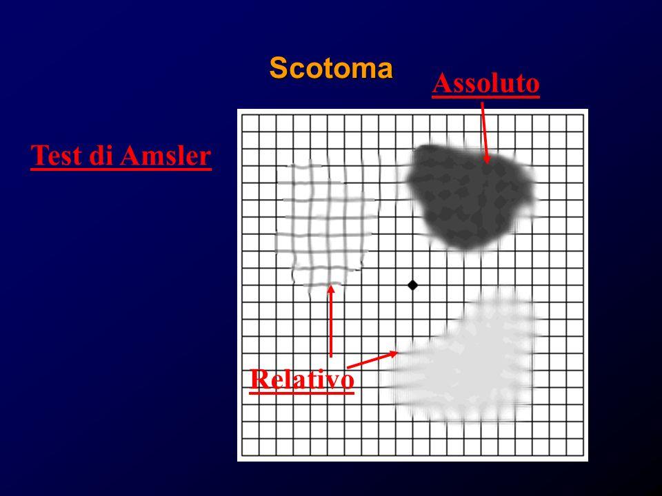Scotoma Test di Amsler Assoluto Relativo